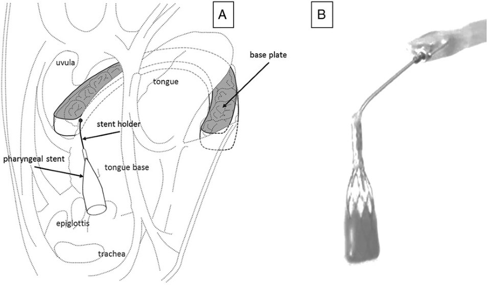 Schematic presentation of the removable pharyngeal stenting device prototype